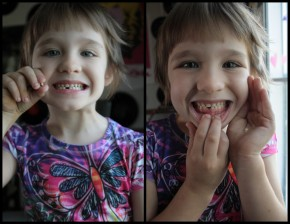 Velouria's first lost tooth